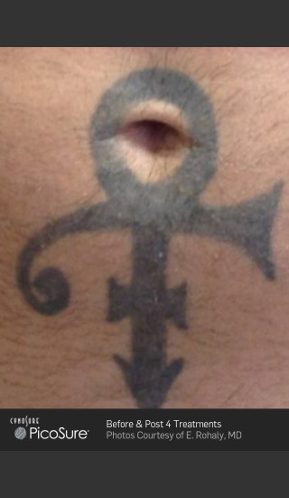 Before Photo for Tattoo Removal Before & After Photo of Cross -  - Prejuvenation