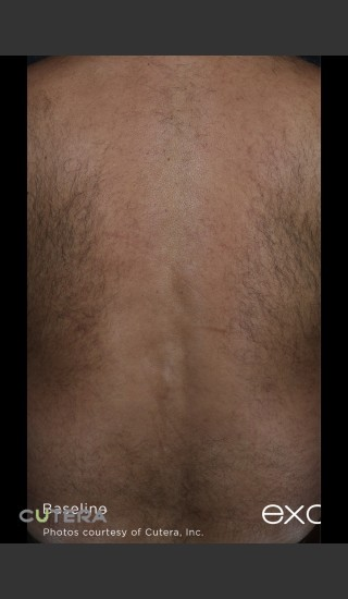 Before Photo for Hair Removal of Full Back With Excel HR -  - Prejuvenation