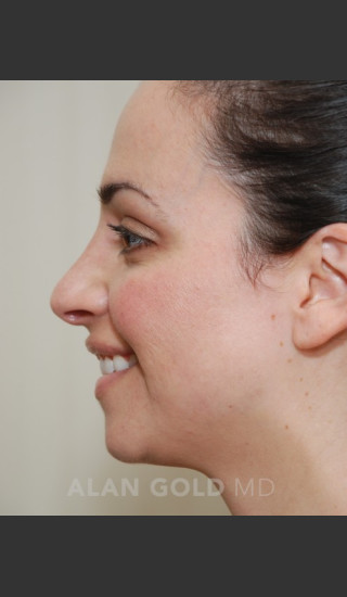 After Photo for Rhinoplasty 1683 Side View - Alan Gold MD - Prejuvenation