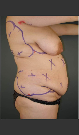 Before Photo for Liposuction #44 Side View - Dr. David Amron - Prejuvenation