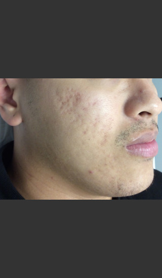 After Photo for Microneedling  - Janell Ocampo - Prejuvenation