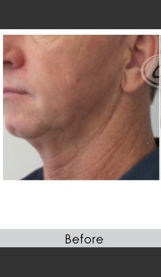 Before Photo for Male Jawline Enhancement with Radiesse - Annie Chiu, MD - Prejuvenation