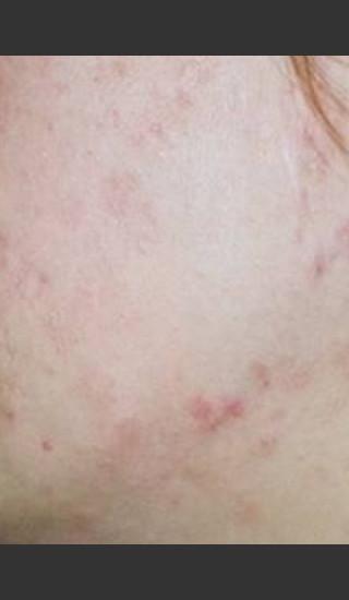 After Photo for Quanta Eterna IPL Acne Treatment #79 -  - Prejuvenation