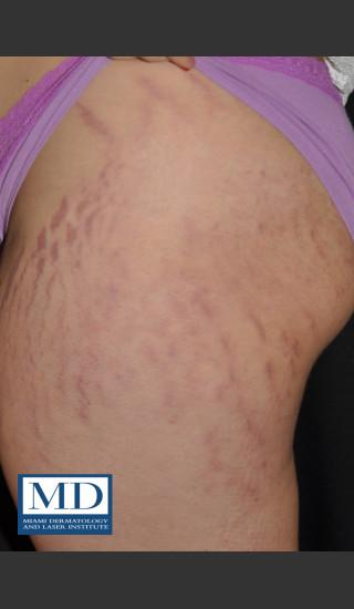 Before Photo for Striae Treatment 127 - Jill S. Waibel, MD - Prejuvenation