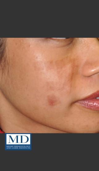 Before Photo for Post Inflammatory Hyperpigmentation 119 - Jill S. Waibel, MD - Prejuvenation