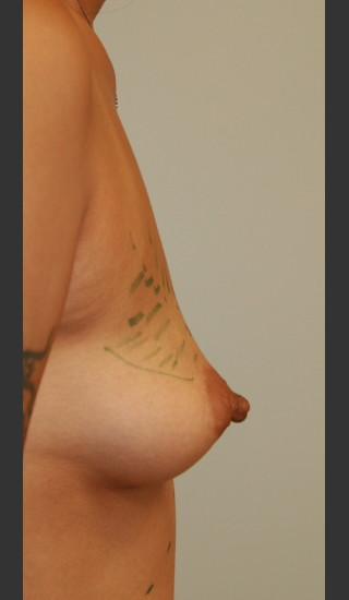 Before Photo for Breast Enhancement with Fat Grafting - James Newman - Prejuvenation