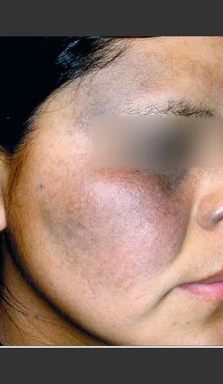 Before Photo for Quanta MDK Nevus of Ota Treatment #76 -  - Prejuvenation