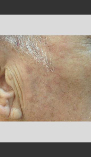 After Photo for Elos - Facial Contouring & Wrinkles -  - Prejuvenation