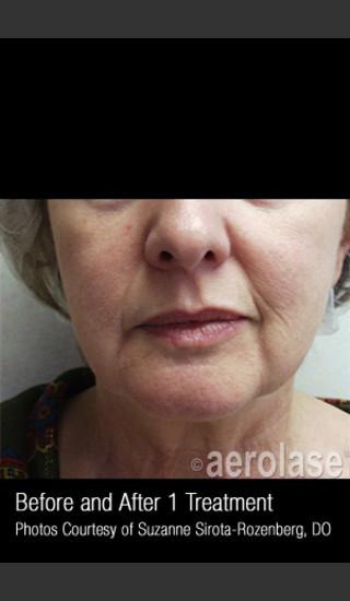 Before Photo for Skin Tightening #342 -  - Prejuvenation