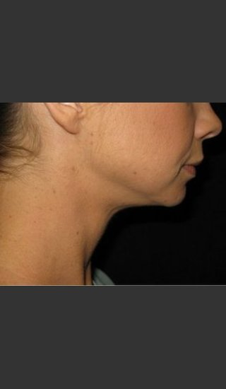 After Photo for Laser Asissted Liposuction - Robert Aycock - Prejuvenation