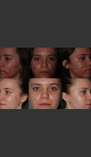 Before Photo for Laser Treatment of Acne - Mark B. Taylor, M.D. - Prejuvenation