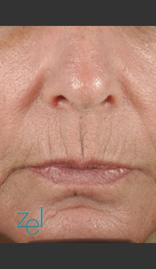 Before Photo for Treatment of Peri-Oral Lines and Wrinkles - Brian D. Zelickson, M.D. - Prejuvenation