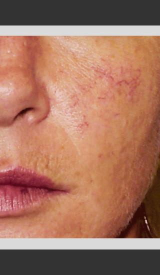 Before Photo for Vbeam Pulsed Dye Laser treatment of Rosacea -  - Prejuvenation