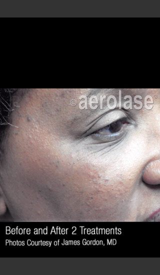 After Photo for Facial Pigmentation & Texture #325 -  - Prejuvenation
