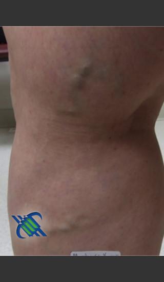 Before Photo for Treatment of Leg Veins - Roy G. Geronemus, M.D. - Prejuvenation