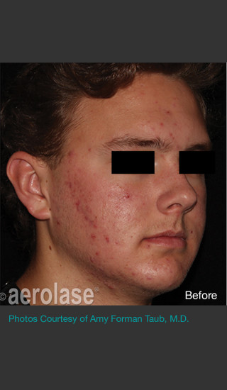 Before Photo for NeoClear by Aerolase Acne Treatment - Amy Forman Taub, MD - Prejuvenation