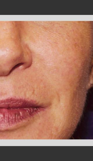 After Photo for Vbeam Pulsed Dye Laser treatment of Rosacea -  - Prejuvenation