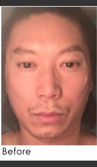 Before Photo for Sculptra for Male Facial Rejuvenation - Annie Chiu, MD - Prejuvenation