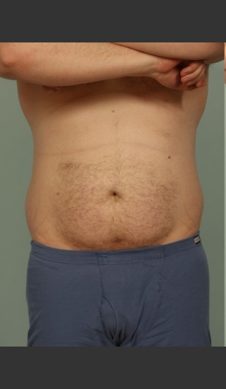 Before Photo for Liposuction - El Paso Cosmetic Surgery - Prejuvenation