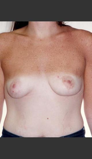 After Photo for Asymmetrical Breast 481 - Alan Gold MD - Prejuvenation