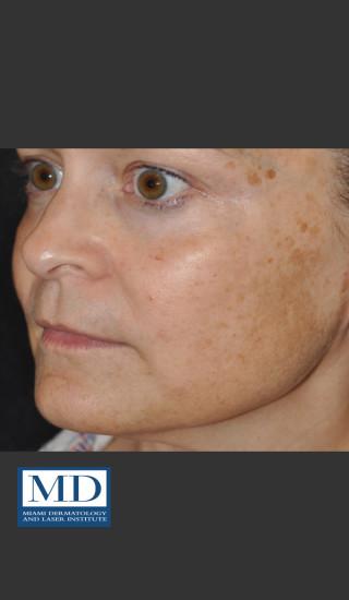Before Photo for Melasma Face Treatment 116 - Jill S. Waibel, MD - Prejuvenation