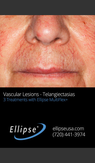 Before Photo for 3 Full Face Rejuvenation Treatments -  - Prejuvenation