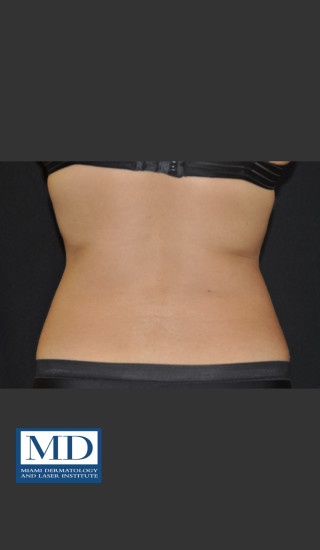 After Photo for  Body Contouring Treatment 141 - Jill S. Waibel, MD - Prejuvenation