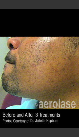 After Photo for Hair Removal #314 -  - Prejuvenation
