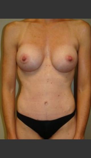 After Photo for Mommy Makeover 8468 - Sanjay Grover MD FACS - Prejuvenation