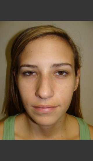 Before Photo for Chin Augmentation with Rhinoplasty 6579 - Sanjay Grover MD FACS - Prejuvenation