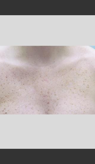 Before Photo for Gentle Laser Skin Rejuvenation Treatment -  - Prejuvenation