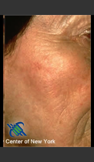 After Photo for Treatment of Brown Spot on Cheek - Roy G. Geronemus, M.D. - Prejuvenation