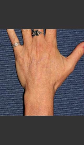 After Photo for Sun Spot Removal on Hands - Dr. Sabrina G. Fabi - Prejuvenation