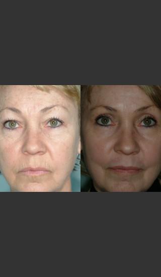 After Photo for Laser resurfacing and laser eyelid surgery performed on same day. - Mark B. Taylor, M.D. - Prejuvenation
