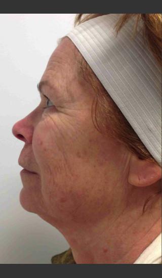 Before Photo for Infini Rhytides Treatment #17 -  - Prejuvenation