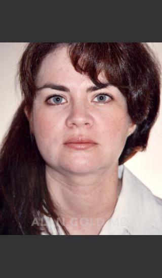 After Photo for Liposuction of Neck 96 - Alan Gold MD - Prejuvenation