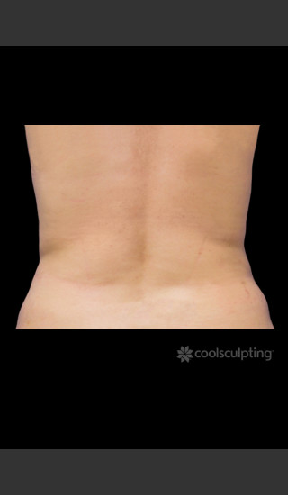 After Photo for CoolSculpting on Woman's Flanks #1 -  - Prejuvenation