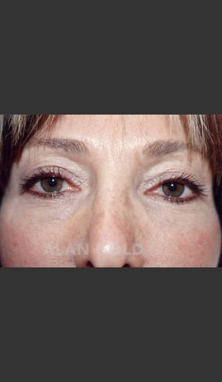 Before Photo for Blepharoplasty 1004 - Alan Gold MD - Prejuvenation