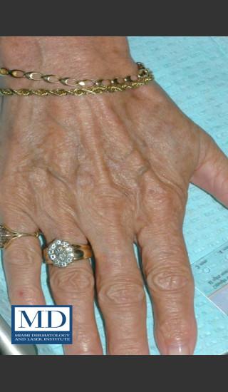 After Photo for Brown Spots on Hands Treatment 113 - Jill S. Waibel, MD - Prejuvenation