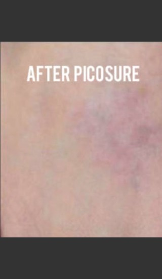 After Photo for Treatment of Tattoo with Picosure - Roy G. Geronemus, M.D. - Prejuvenation