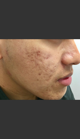 Before Photo for Microneedling  - Janell Ocampo - Prejuvenation