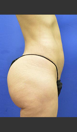 After Photo for Brazilian Butt Lift Case #1 - Paul C. Dillon, MD - Prejuvenation