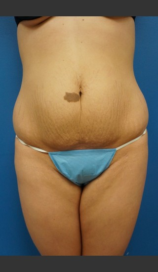 Before Photo for Abdominoplasty (Tummy Tuck) Before & After - Dr. Josh Olson - Prejuvenation