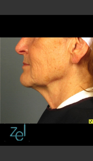 After Photo for Ultherapy on Mid Face with Dermal Fillers - Brian D. Zelickson, M.D. - Prejuvenation