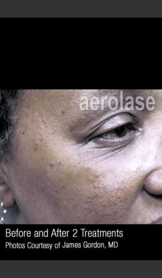 Before Photo for Facial Pigmentation & Texture #325 -  - Prejuvenation
