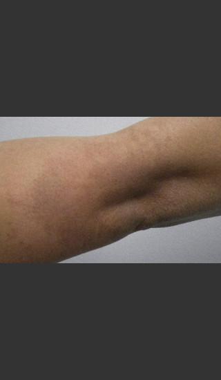 After Photo for Becker's Nevus Birthmark - Paul M. Friedman, M.D. - Prejuvenation
