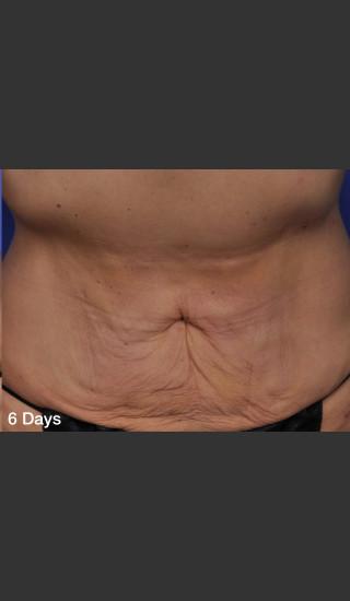 After Photo for ThermiTight Treatment - Barry E. DiBernardo, MD, FACS - Prejuvenation