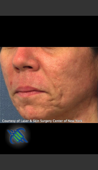 Before Photo for Treatment of Lower Face Acne Scarring - Roy G. Geronemus, M.D. - Prejuvenation