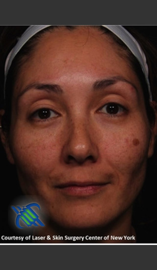 Before Photo for Full Face Treatment with Fraxel - Roy G. Geronemus, M.D. - Prejuvenation