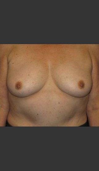 Before Photo for Breast Augmentation  - Robert Aycock - Prejuvenation